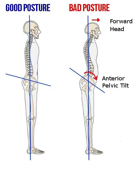 FE Greetings from Nolandia anterior-pelvic-tilt